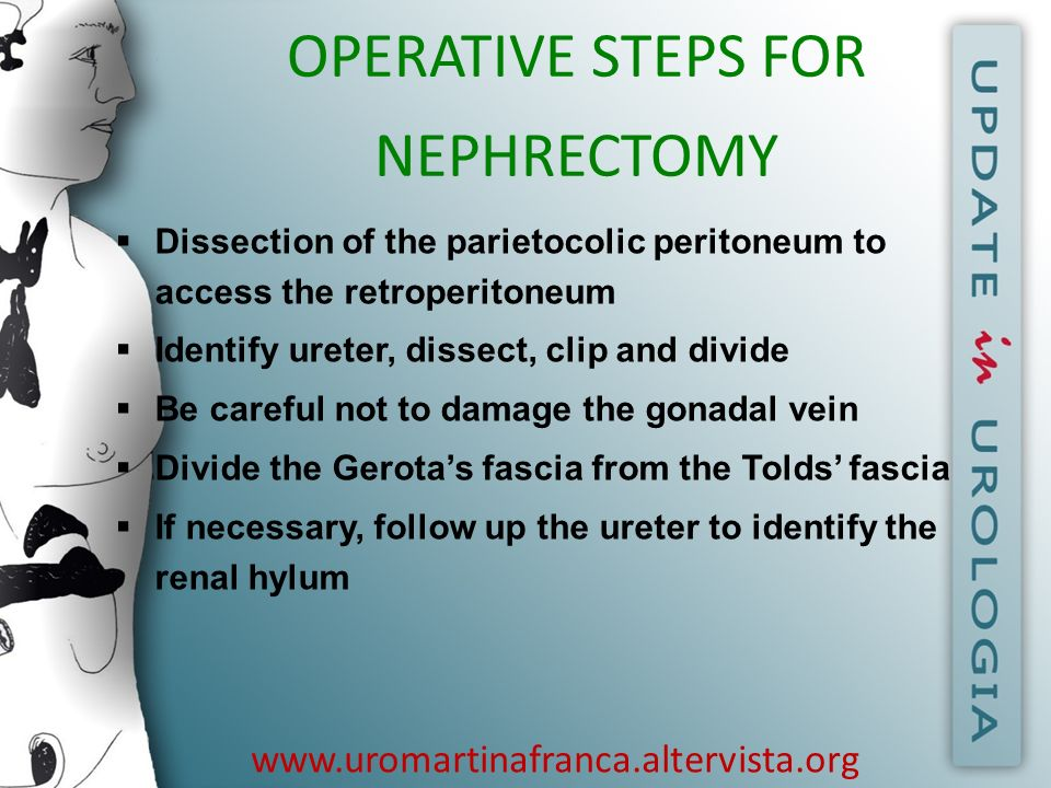 OPERATIVE STEPS FOR NEPHRECTOMY