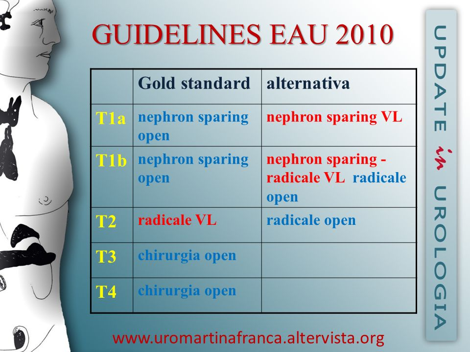 GUIDELINES EAU 2010 www.uromartinafranca.altervista.org Gold standard