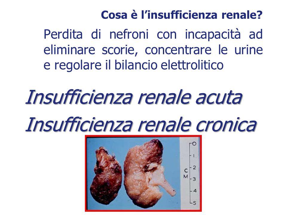 Cosa è l'insufficienza renale