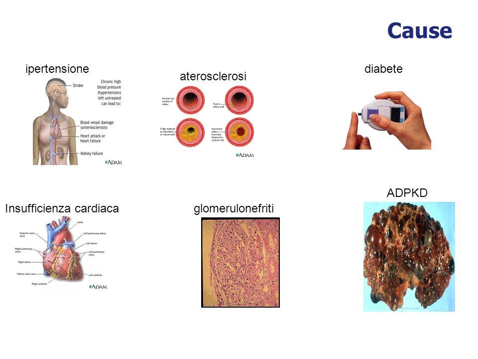 Cause ipertensione diabete aterosclerosi ADPKD Insufficienza cardiaca