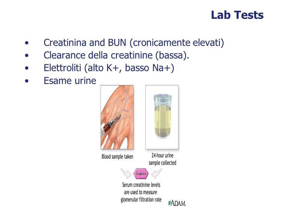 Lab Tests Creatinina and BUN (cronicamente elevati)