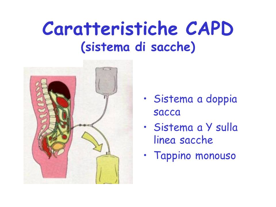 Caratteristiche CAPD (sistema di sacche)