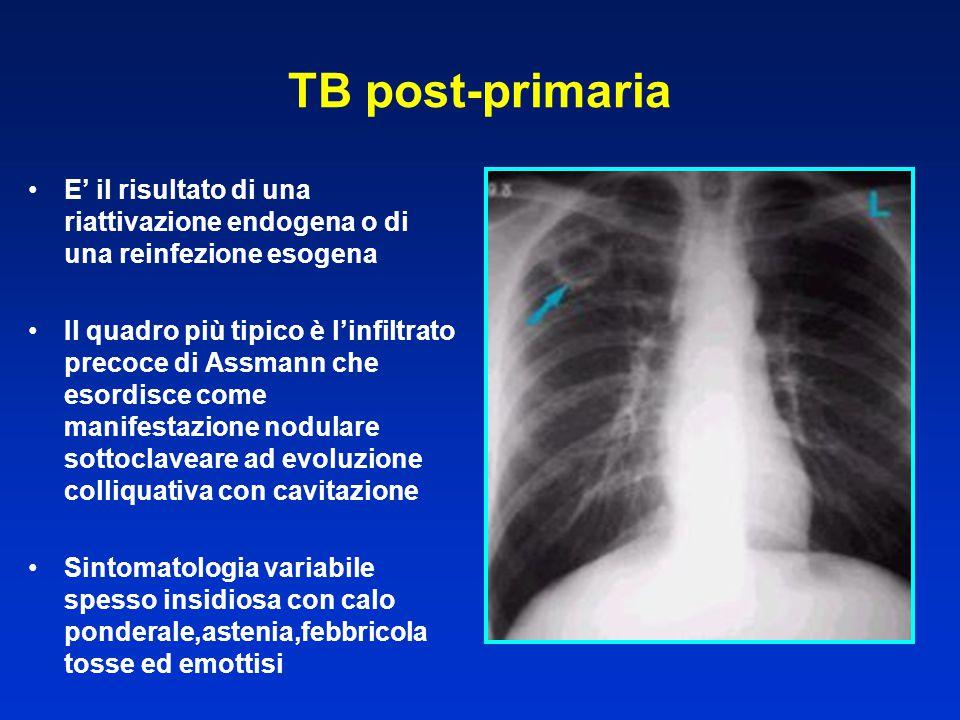 TB post-primaria E' il risultato di una riattivazione endogena o di una reinfezione esogena.