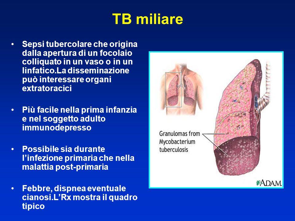 TB miliare