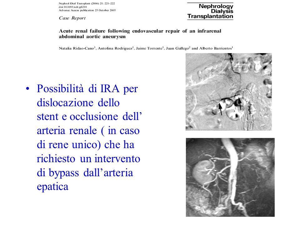 Possibilità di IRA per dislocazione dello stent e occlusione dell' arteria renale ( in caso di rene unico) che ha richiesto un intervento di bypass dall'arteria epatica