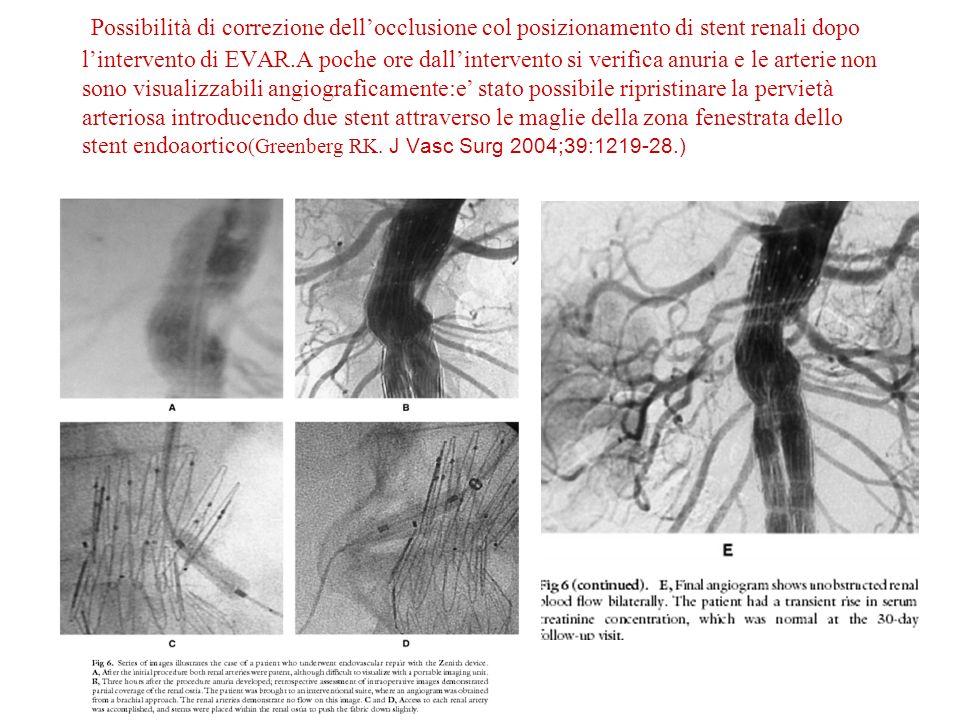 Possibilità di correzione dell'occlusione col posizionamento di stent renali dopo l'intervento di EVAR.A poche ore dall'intervento si verifica anuria e le arterie non sono visualizzabili angiograficamente:e' stato possibile ripristinare la pervietà arteriosa introducendo due stent attraverso le maglie della zona fenestrata dello stent endoaortico(Greenberg RK.