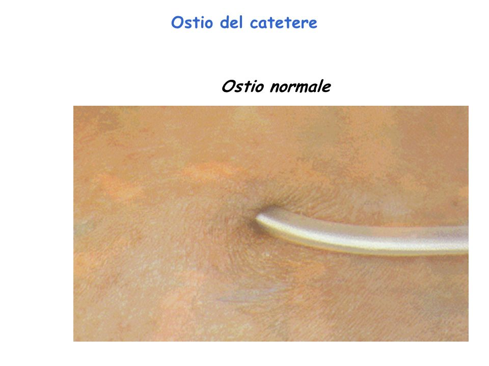 Ostio del catetere Ostio normale