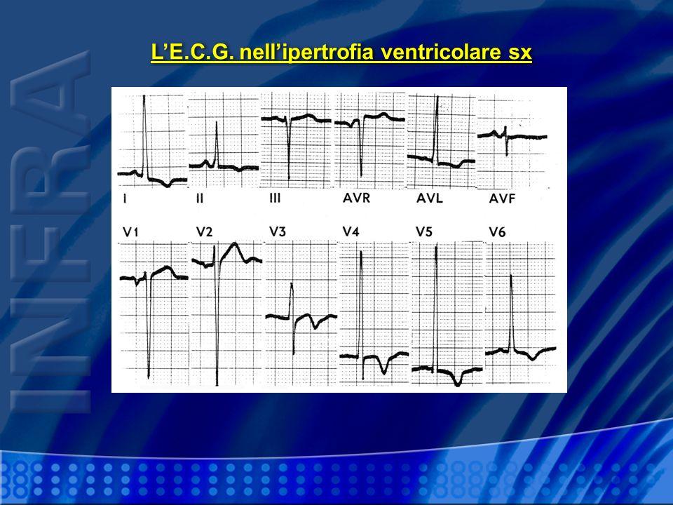 L'E.C.G. nell'ipertrofia ventricolare sx