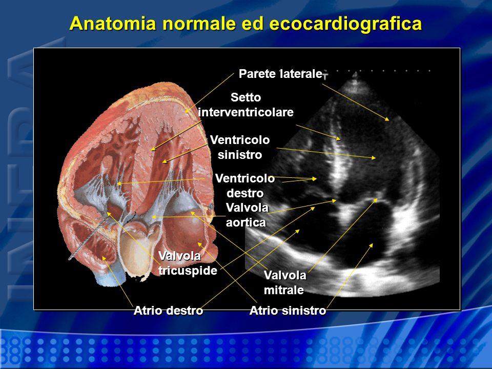 Anatomia normale ed ecocardiografica
