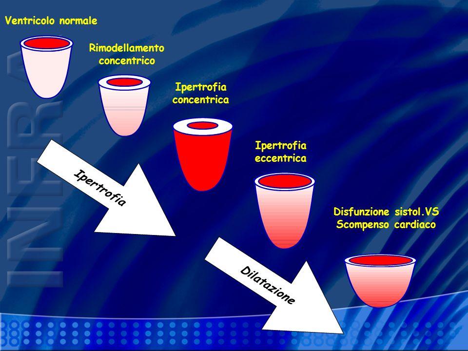Ipertrofia Dilatazione