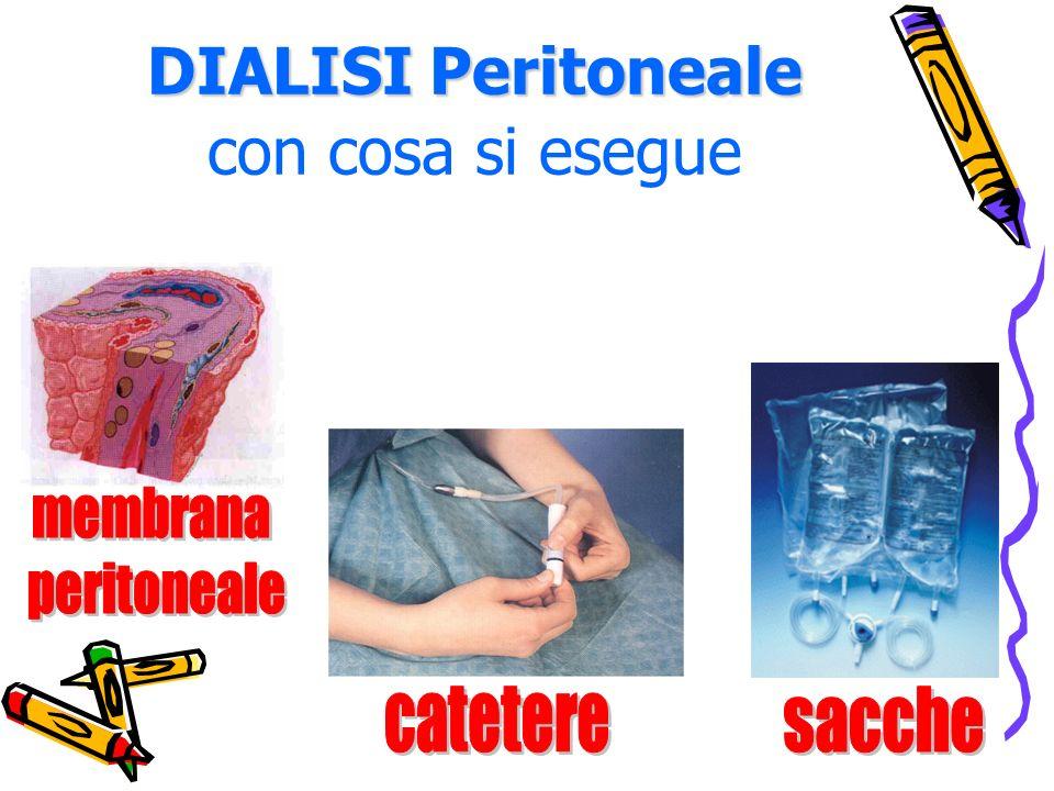 DIALISI Peritoneale con cosa si esegue