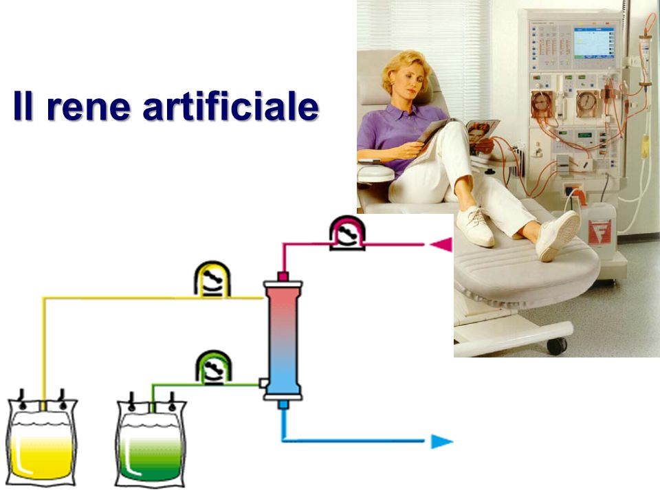 Il rene artificiale