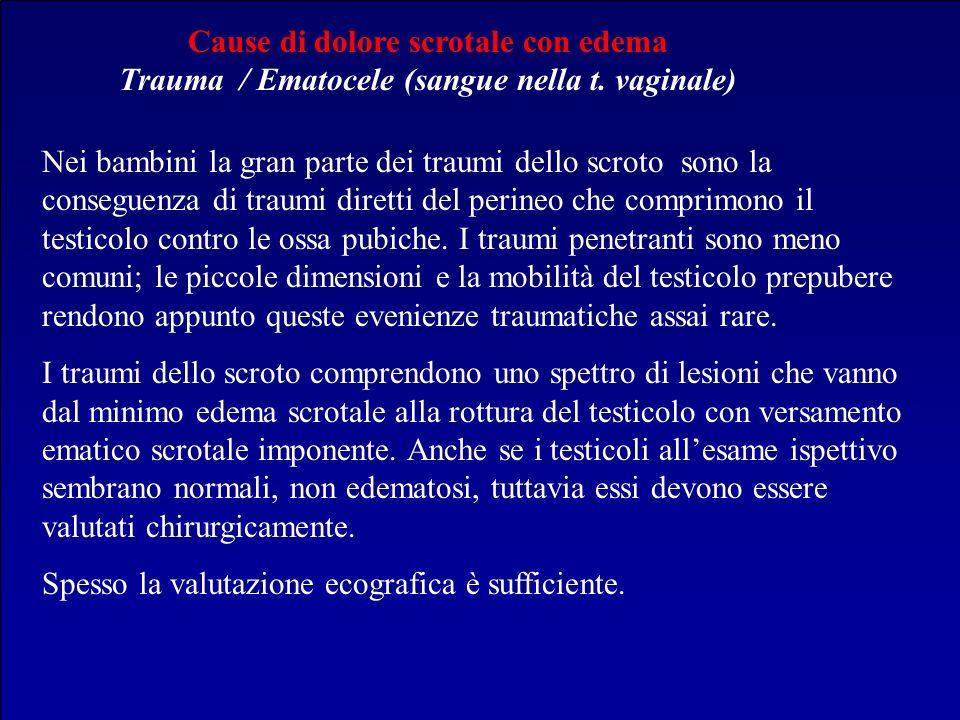Cause di dolore scrotale con edema Trauma / Ematocele (sangue nella t