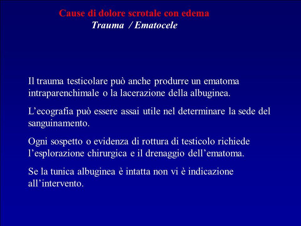 Cause di dolore scrotale con edema Trauma / Ematocele