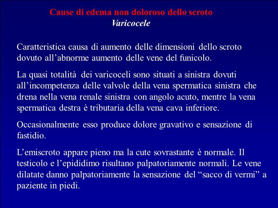 Cause di edema non doloroso dello scroto Varicocele
