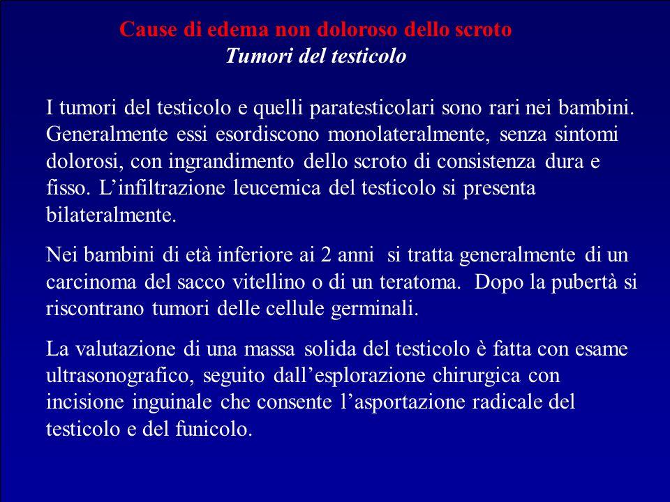 Cause di edema non doloroso dello scroto Tumori del testicolo