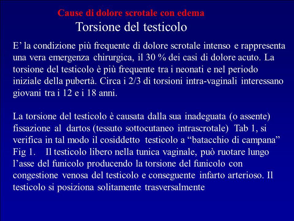 Cause di dolore scrotale con edema Torsione del testicolo