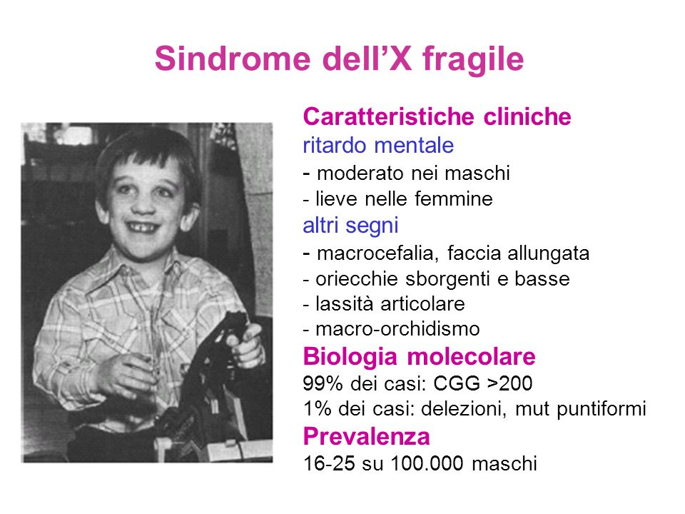 Sindrome dell'X fragile