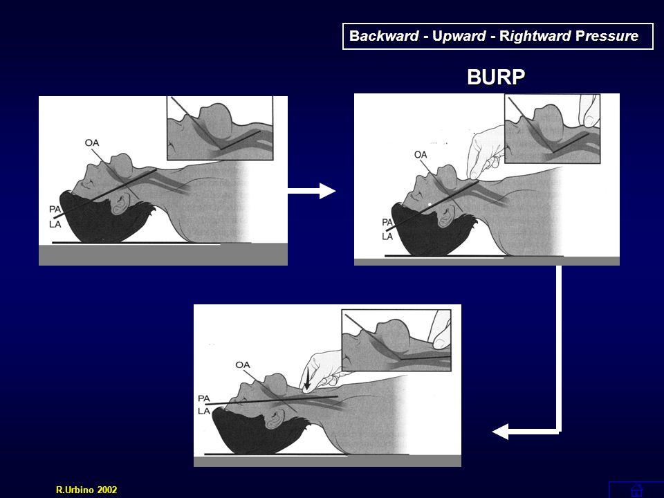Backward - Upward - Rightward Pressure