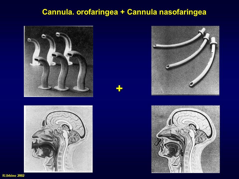 Cannula. orofaringea + Cannula nasofaringea