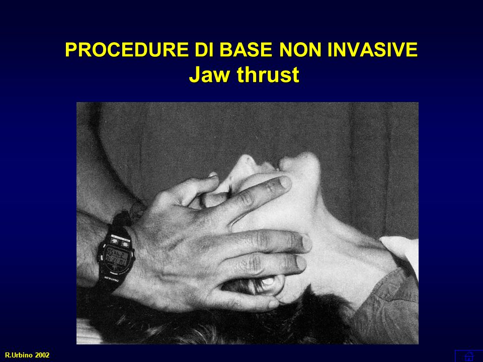PROCEDURE DI BASE NON INVASIVE Jaw thrust