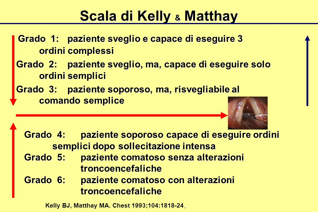 Scala di Kelly & Matthay