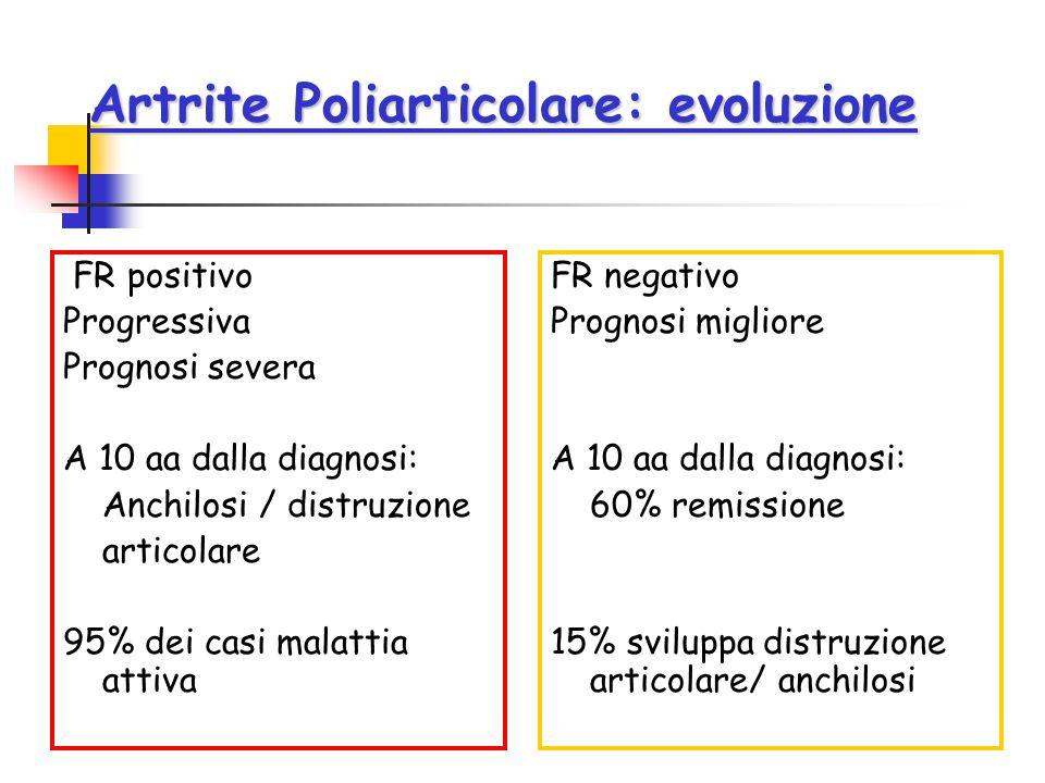 Artrite Poliarticolare: evoluzione