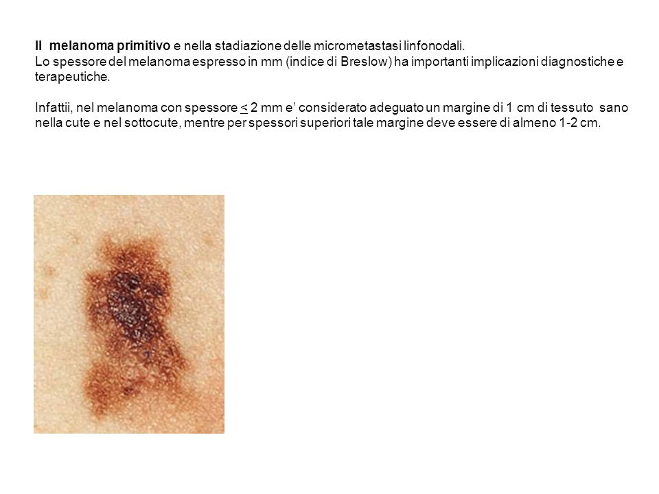 Il melanoma primitivo e nella stadiazione delle micrometastasi linfonodali.