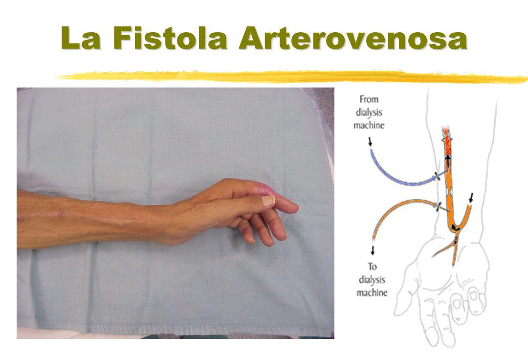 La Fistola Arterovenosa