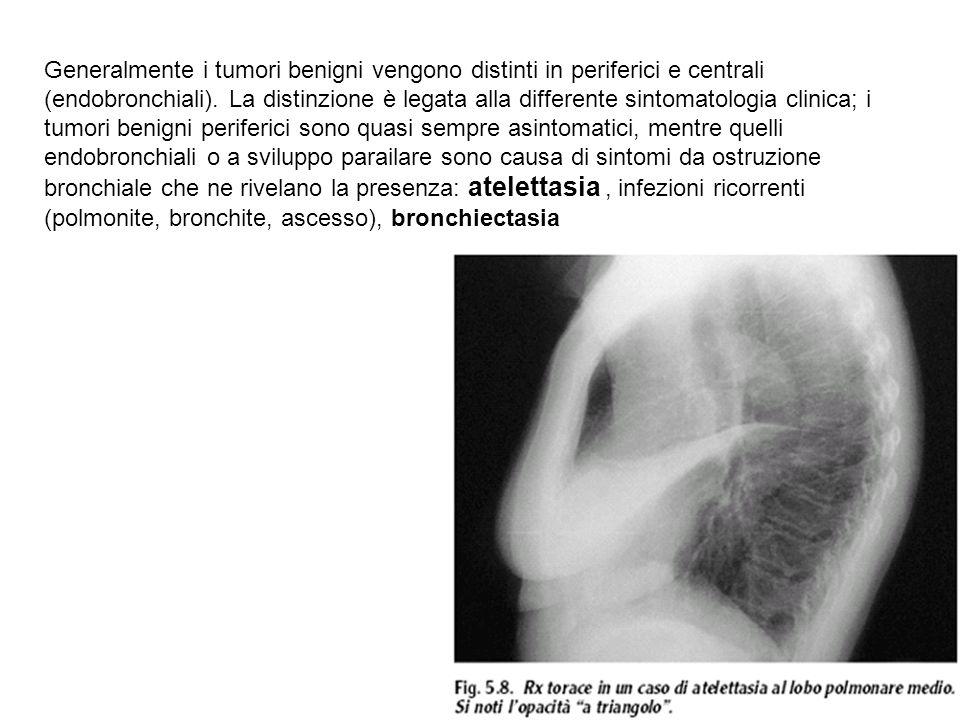 Generalmente i tumori benigni vengono distinti in periferici e centrali (endobronchiali).