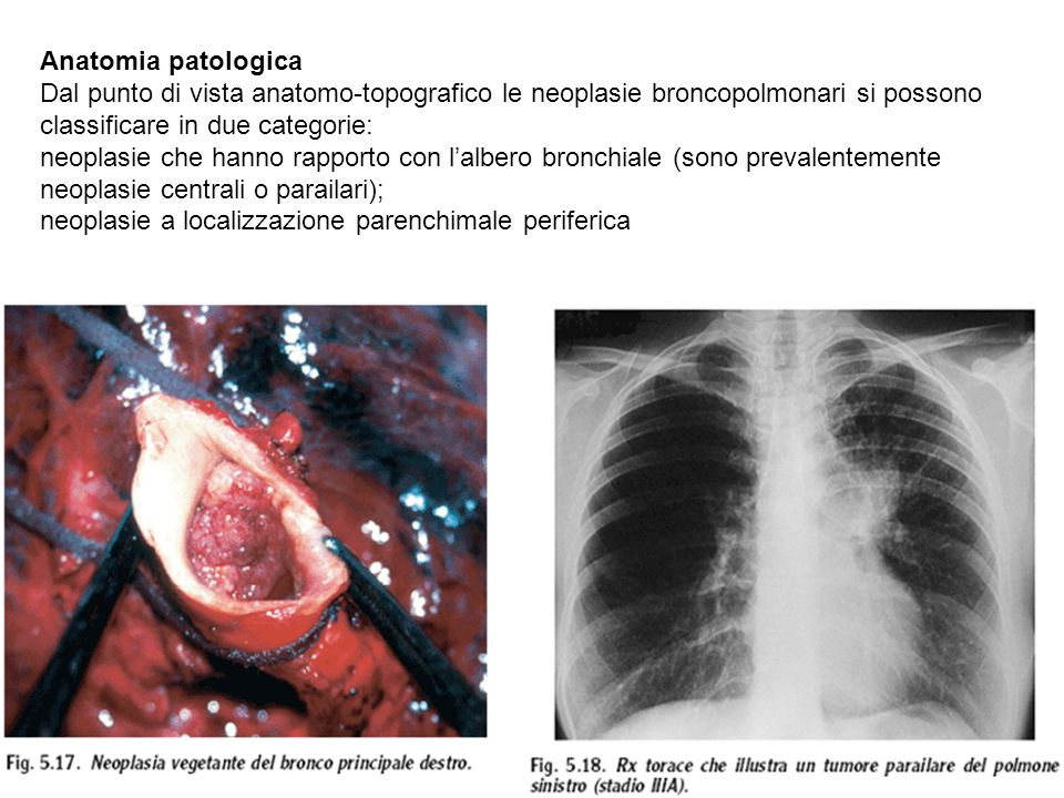 Anatomia patologica Dal punto di vista anatomo-topografico le neoplasie broncopolmonari si possono classificare in due categorie: