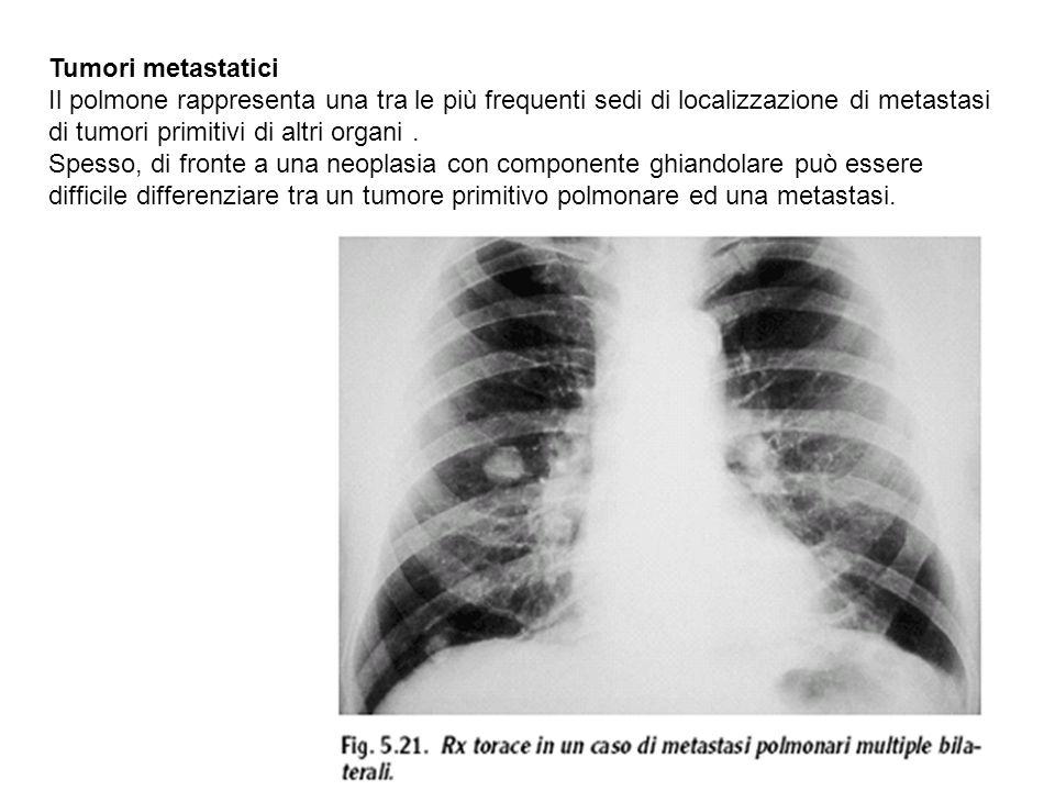 Tumori metastatici Il polmone rappresenta una tra le più frequenti sedi di localizzazione di metastasi di tumori primitivi di altri organi .