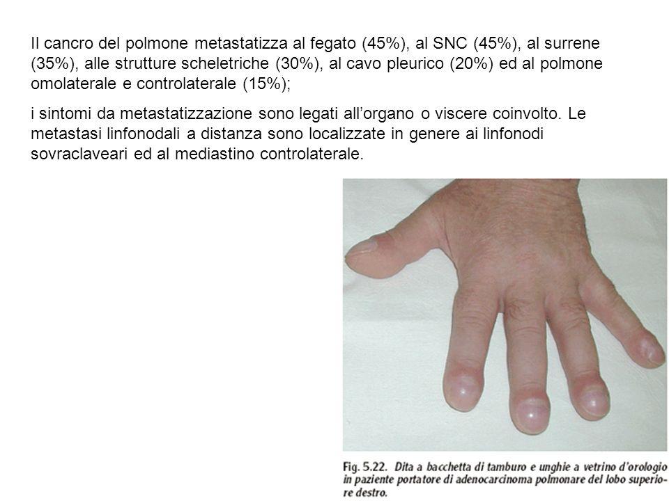 Il cancro del polmone metastatizza al fegato (45%), al SNC (45%), al surrene (35%), alle strutture scheletriche (30%), al cavo pleurico (20%) ed al polmone omolaterale e controlaterale (15%);