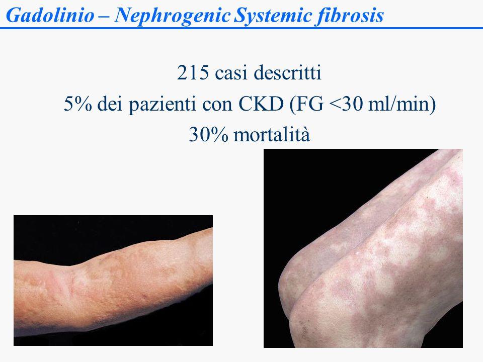 Gadolinio – Nephrogenic Systemic fibrosis