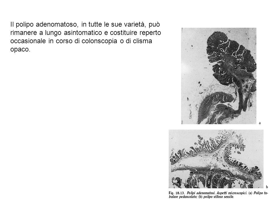 Il polipo adenomatoso, in tutte le sue varietà, può rimanere a lungo asintomatico e costituire reperto occasionale in corso di colonscopia o di clisma opaco.