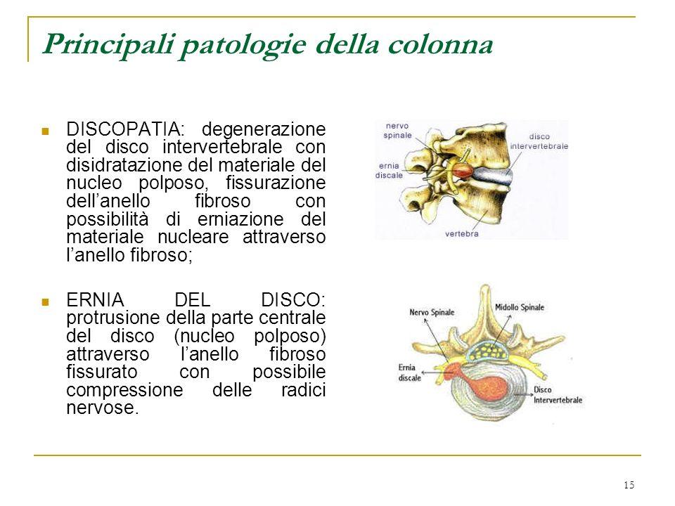 Principali patologie della colonna