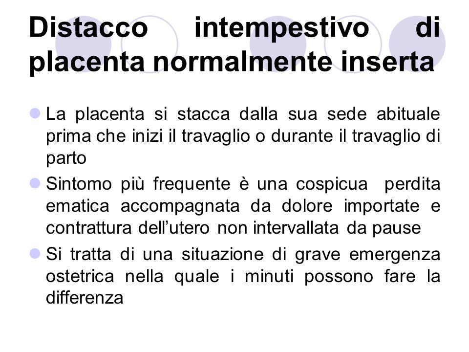 Distacco intempestivo di placenta normalmente inserta