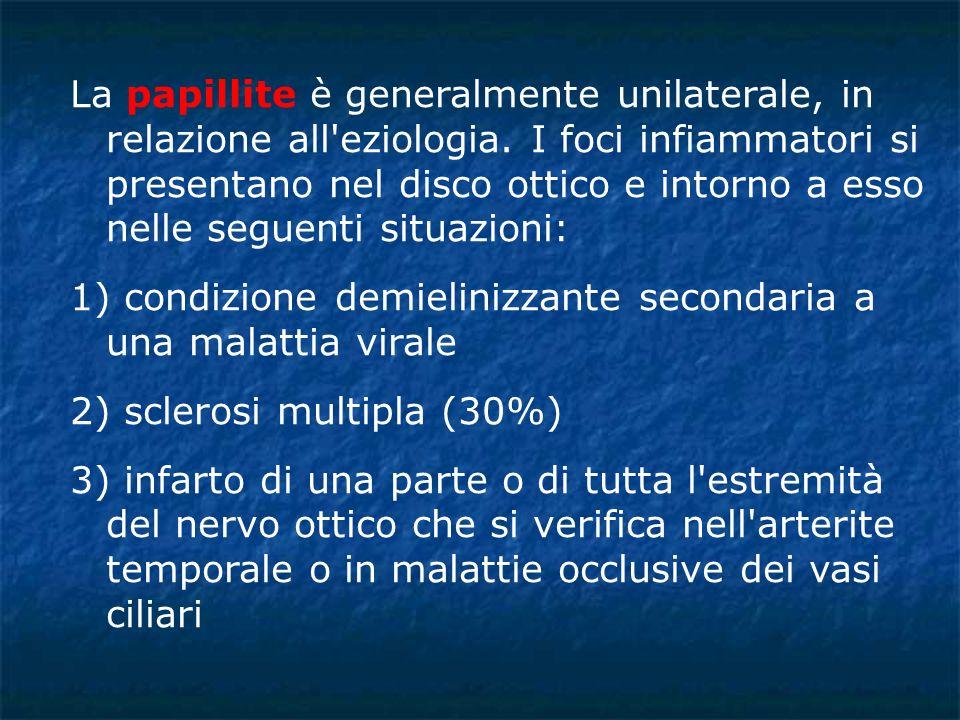 La papillite è generalmente unilaterale, in relazione all eziologia