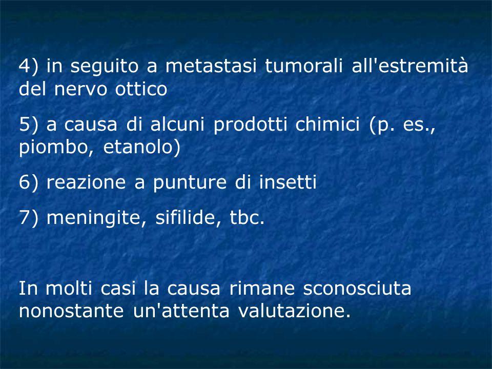 4) in seguito a metastasi tumorali all estremità del nervo ottico