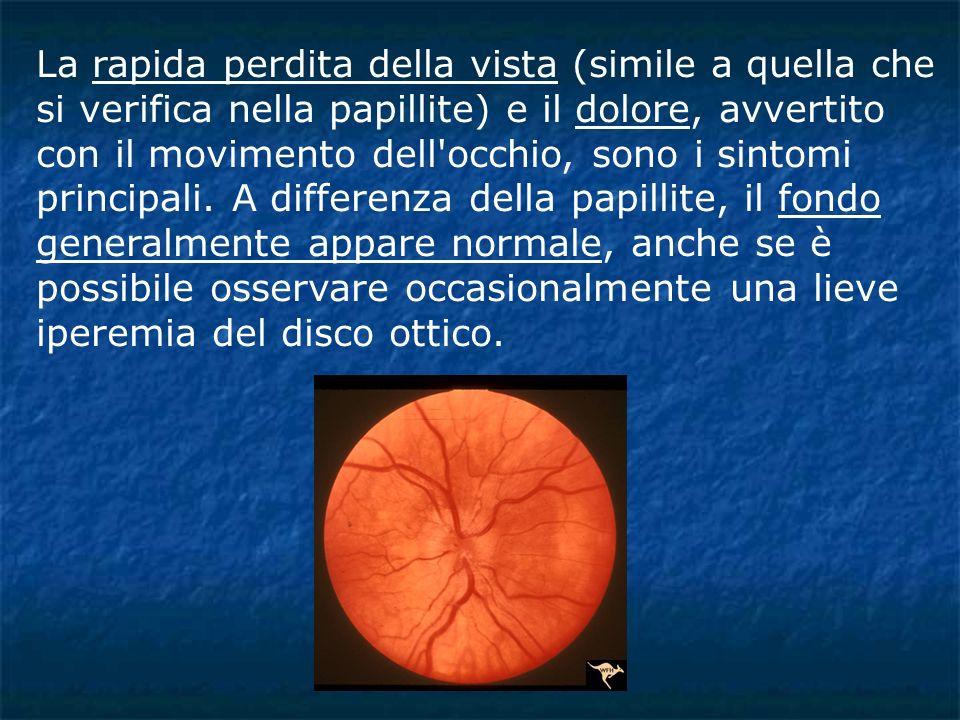 La rapida perdita della vista (simile a quella che si verifica nella papillite) e il dolore, avvertito con il movimento dell occhio, sono i sintomi principali.