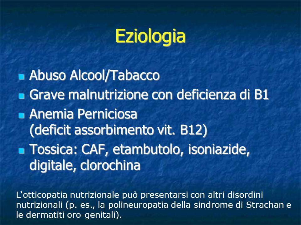 Eziologia Abuso Alcool/Tabacco