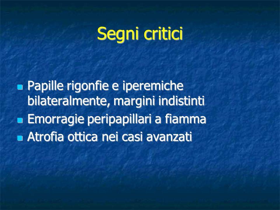Segni critici Papille rigonfie e iperemiche bilateralmente, margini indistinti. Emorragie peripapillari a fiamma.