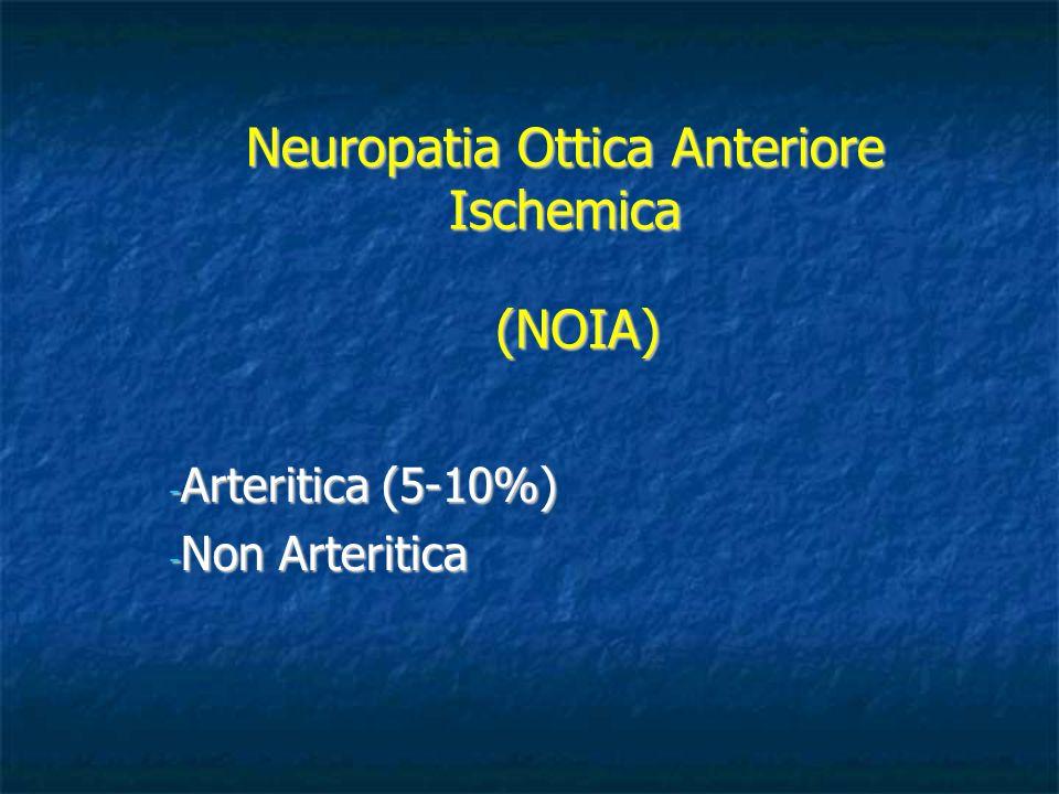 Neuropatia Ottica Anteriore Ischemica