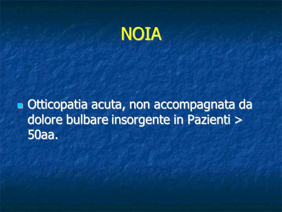 NOIA Otticopatia acuta, non accompagnata da dolore bulbare insorgente in Pazienti > 50aa.