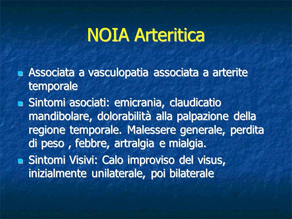 NOIA Arteritica Associata a vasculopatia associata a arterite temporale.