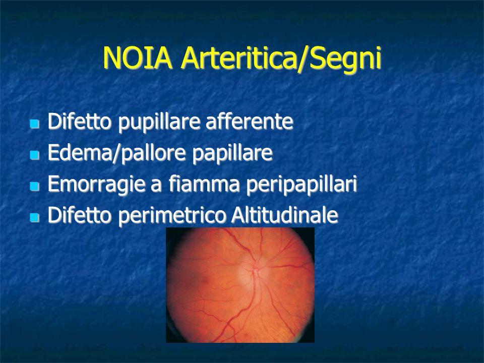 NOIA Arteritica/Segni