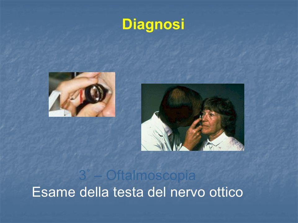 3° – Oftalmoscopia Esame della testa del nervo ottico