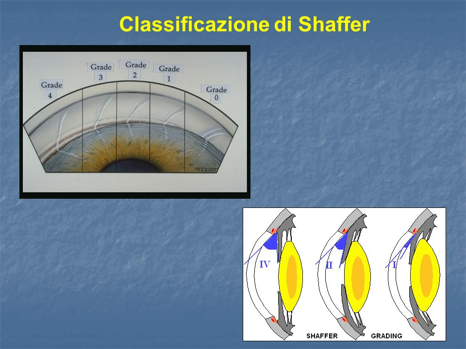Classificazione di Shaffer