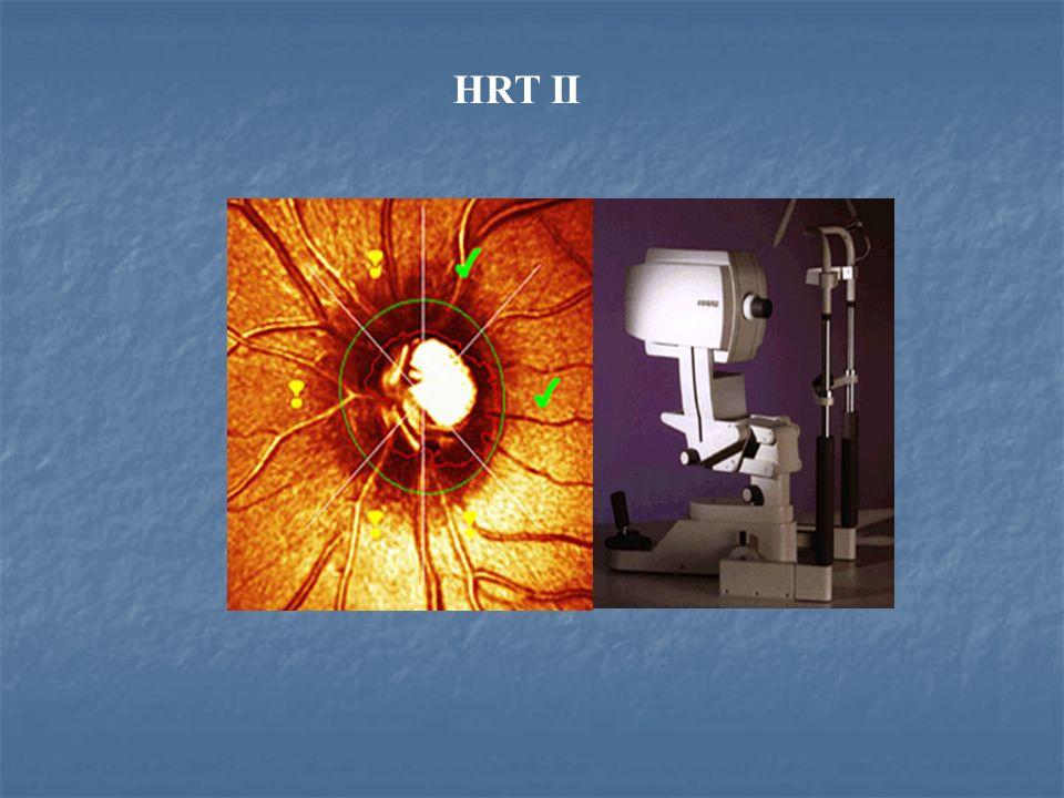 HRT II