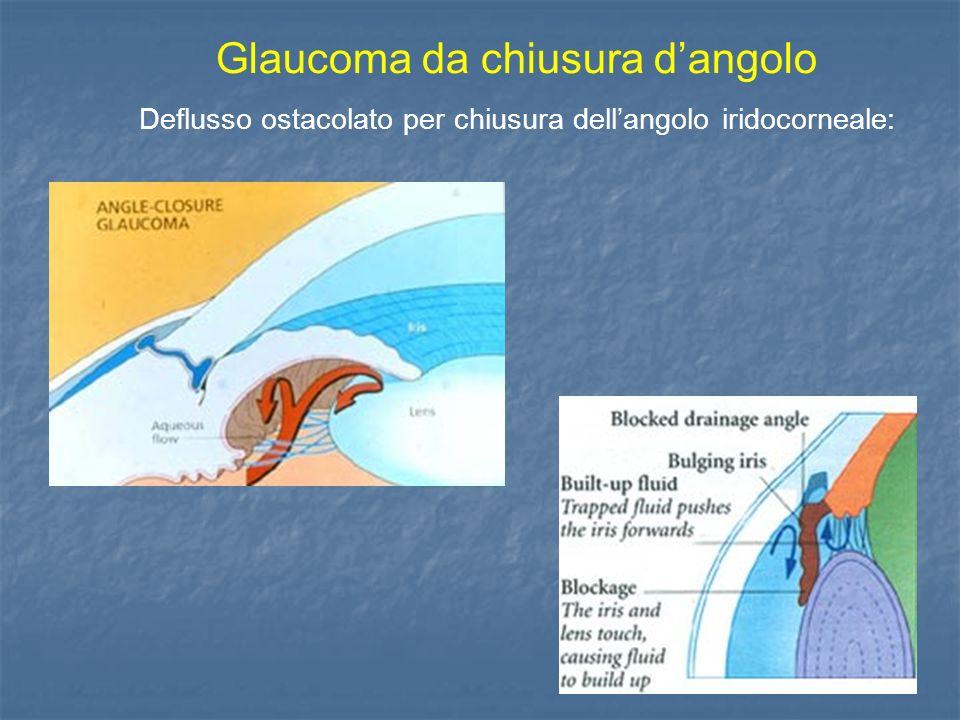 Glaucoma da chiusura d'angolo